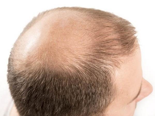 Алопеция у детей: причины облысения, что предпринять при выпадении волос