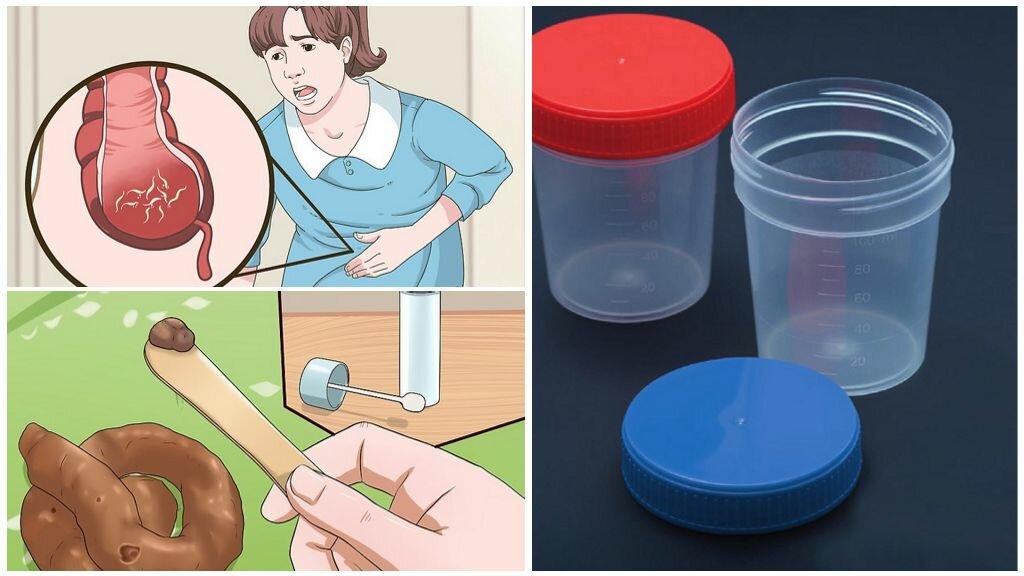Анализ крови у детей на глисты: показатели