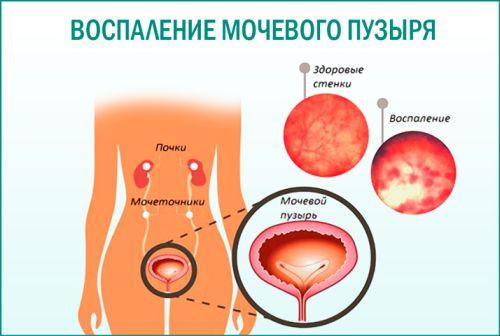 Цистит после родов: причины возникновения, симптомы и лечение