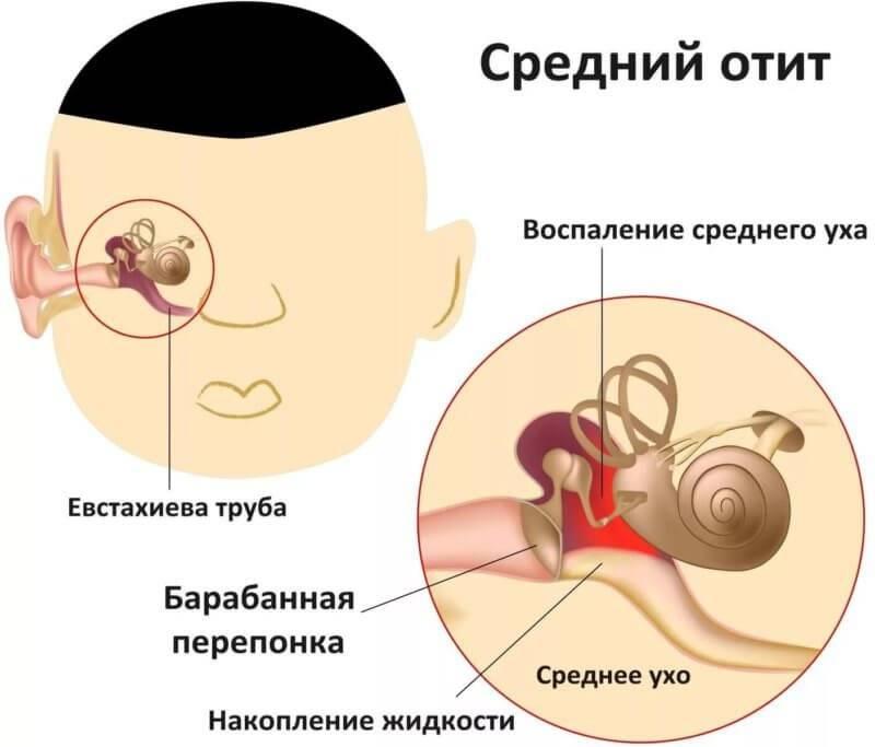 Как определить отит у грудничка: симптомы, признаки, лечение