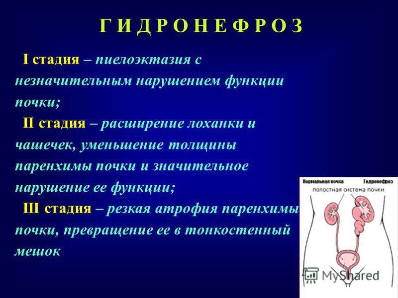 Пиелоэктазия у плода мальчика и девочки с обеих сторон при узи: причины