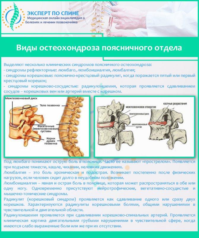 Остеохондроз позвоночника: симптомы и лечение