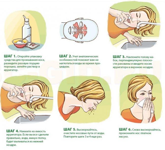 Чем промывать нос в домашних условиях