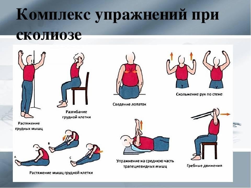 Занятия гимнастикой при сколиозе 1 степени в домашних условиях
