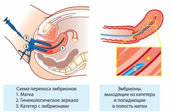 Как вести себя после переноса эмбрионов, когда они должны прижиться в случае удачного эко?