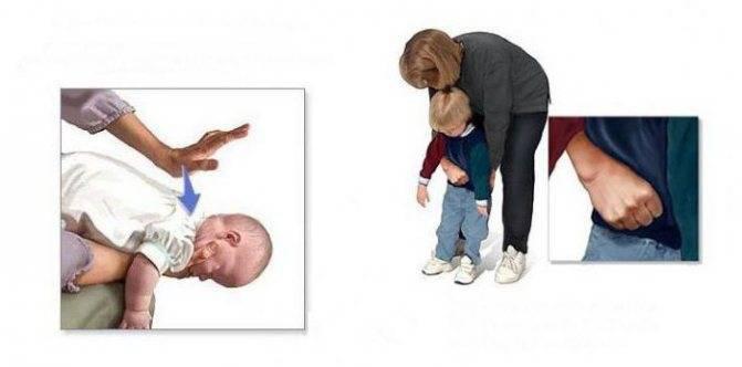 Ребенок подавился, что делать, чем может подавиться