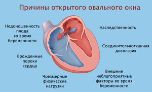 Открытое овальное окно в сердце у подростка