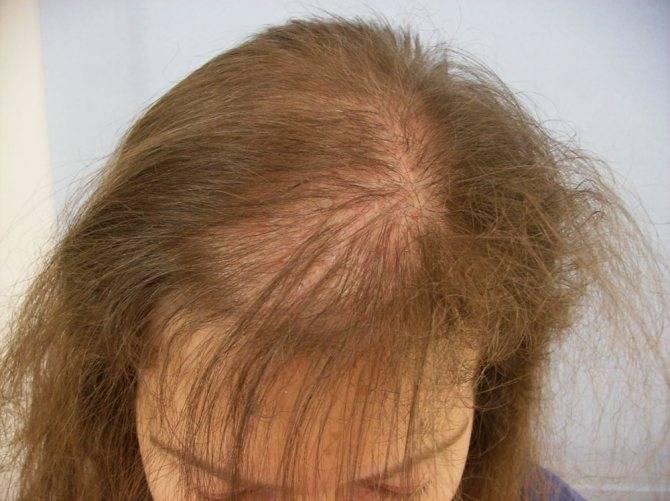Что делать при выпадении волос у ребенка