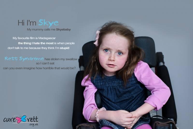Синдром ретта у детей, что это? фото, симптомы и лечение