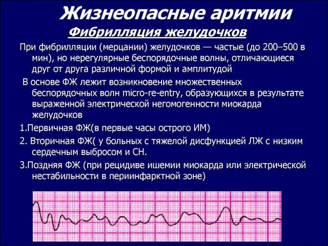 Экстрасистолы у ребенка: причины и их лечение — заболевания сердца