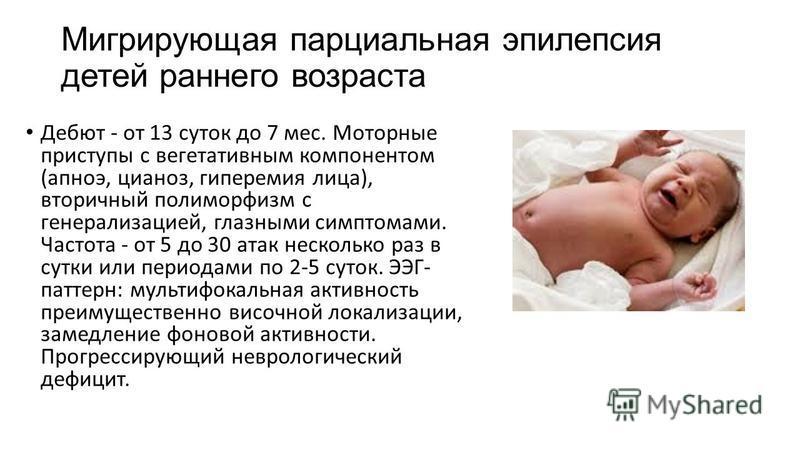Эпилепсия у детей до года: симптомы, причины развития заболевания у дошкольников и школьников