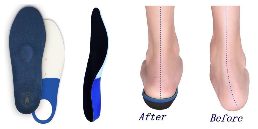 Ортопедические стельки | как выбрать и как носить