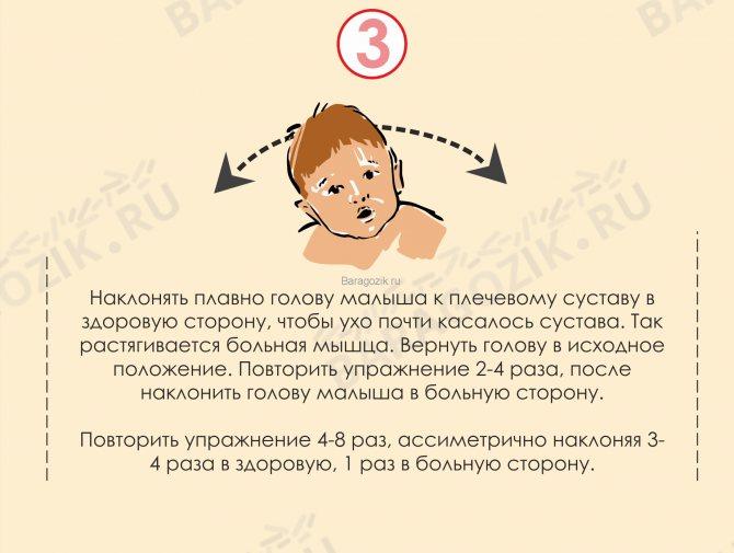 Кривошея у новорожденных: причины возникновения, симптомы у младенцев, массаж и другие методы как лечить