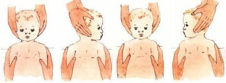 Кривошея у новорожденных: признаки и лечение, причины, симптомы у грудничка в 3 месяца