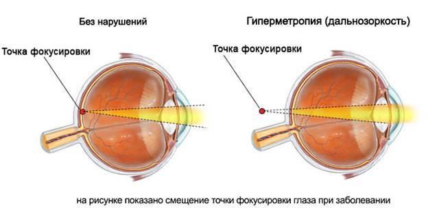 Дальнозоркий астигматизм у детей, врожденный у ребенка, миопический, сложный обоих глаз, гипертрофический, обратный