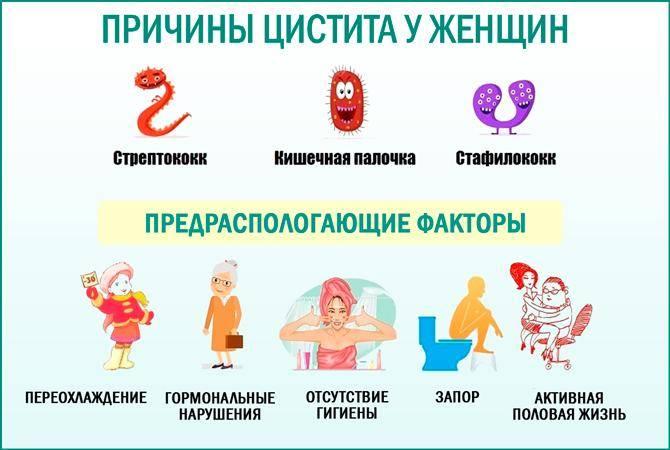 Цистит медового месяца: симптомы, лечение, причины