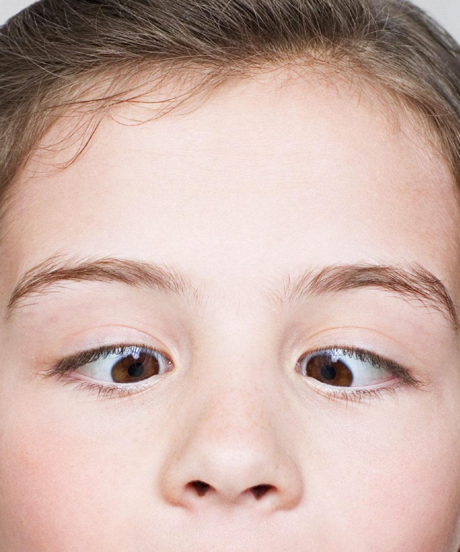 Косоглазие (страбизм): причины и лечение у детей, исправление