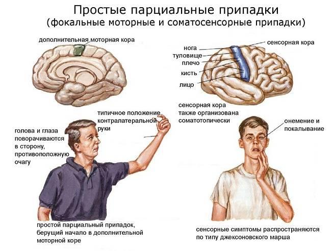 Парциальная эпилепсия (фокальная, локальная) — симптомы, формы, локализация