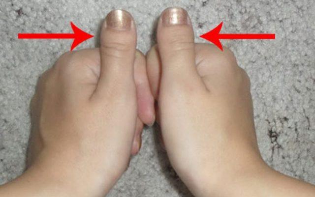 Брахидактилия большого пальца: что это такое, причины, симптомы, лечение