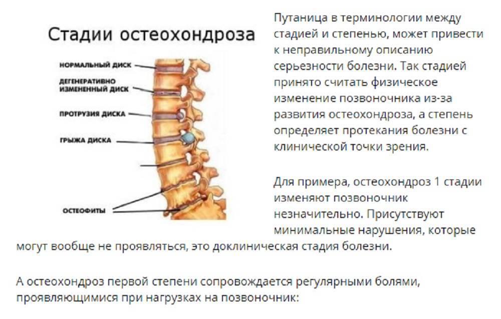 Остеохондроз грудного отдела - симптомы, лечение и профилактика