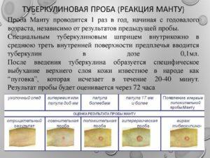 Реакция манту: норма у детей 5 лет по таблице, размер прививки у ребенка 10 и 15 мм