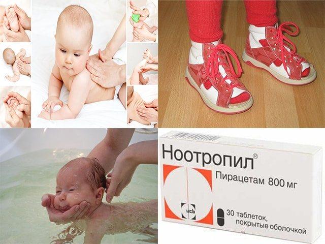 Почему ребенок ходит на носочках (цыпочках): причины, лечение