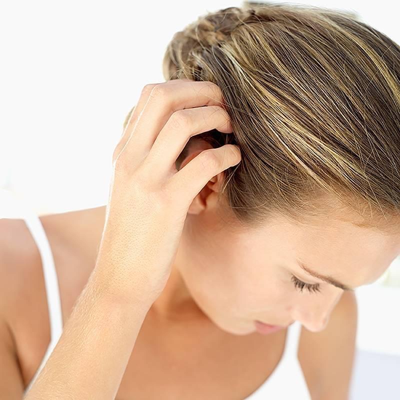 Что делать, если сухая кожа головы, как увлажнить