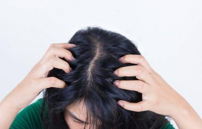 Сухость кожи головы у грудничка – что необходимо делать