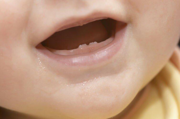 Во сколько прорезаются первые зубы у младенцев и какие, чем малышу помочь