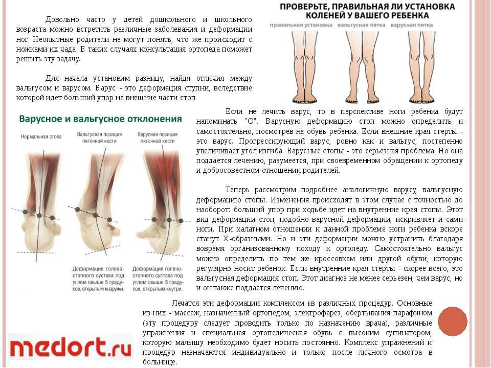 Вальгусные колени у детей лечение - крепкое здоровье