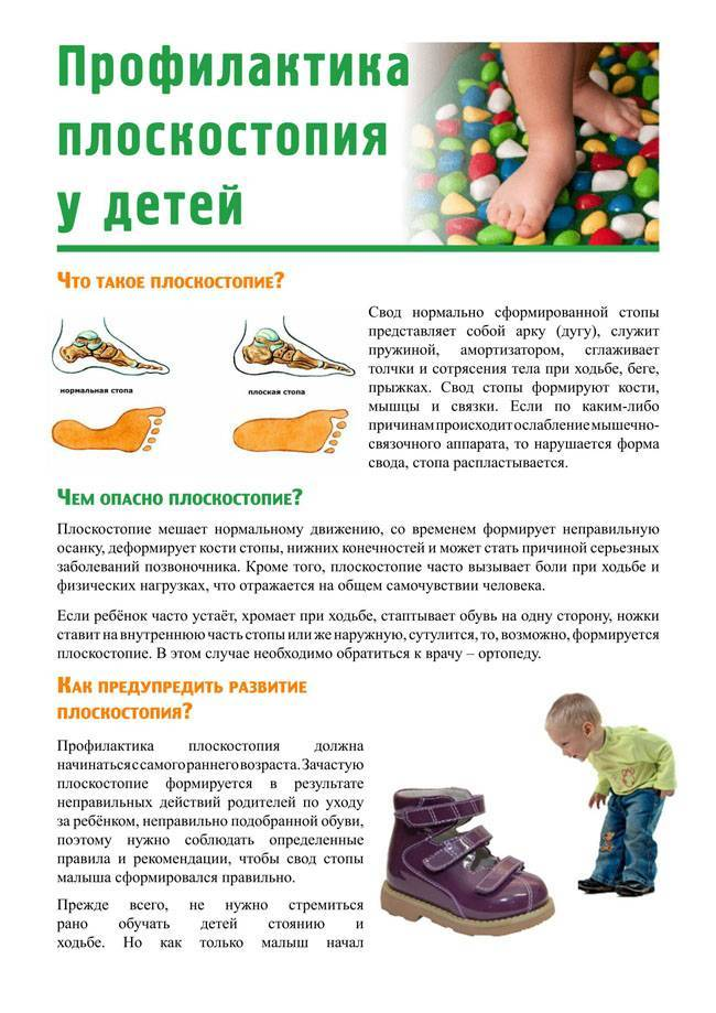 Плоскостопие у детей - как определить степень, симптомы и лечение