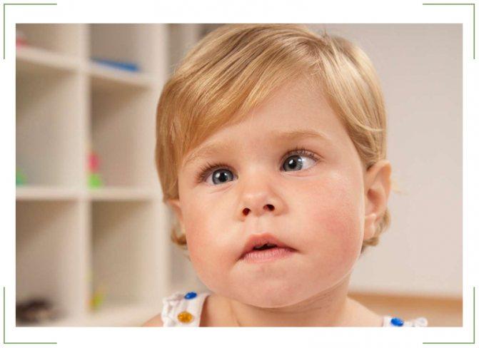Причины и лечение косоглазия у детей