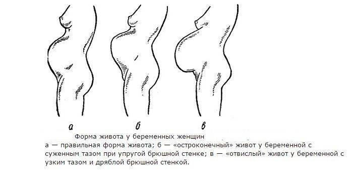 Предлежание плаценты: «безвыходная» беременность