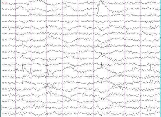 Доброкачественная роландическая эпилепсия