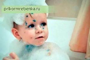 Можно ли купать ребенка при ветрянке: можно ли мыться при ветрянке, когда и на какой день мыть голову и лицо при ветряной оспе