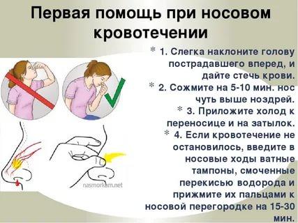 Энциклопедия - первая помощь при кровотечении из носа у детей