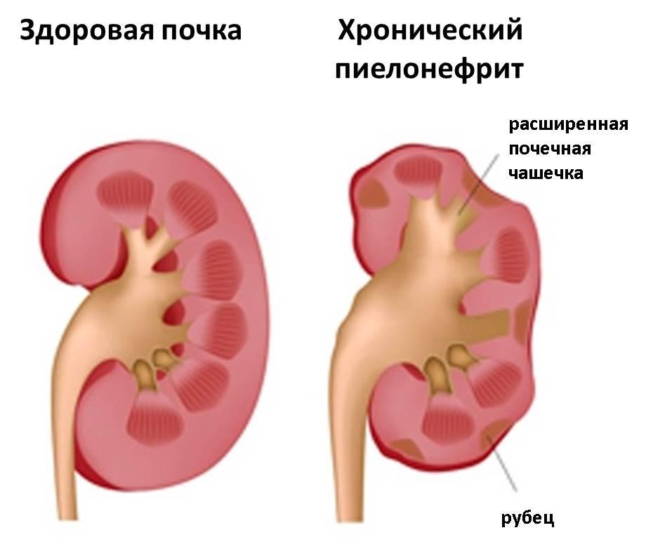 Пиелонефрит: серьёзная проблема грудного возраста