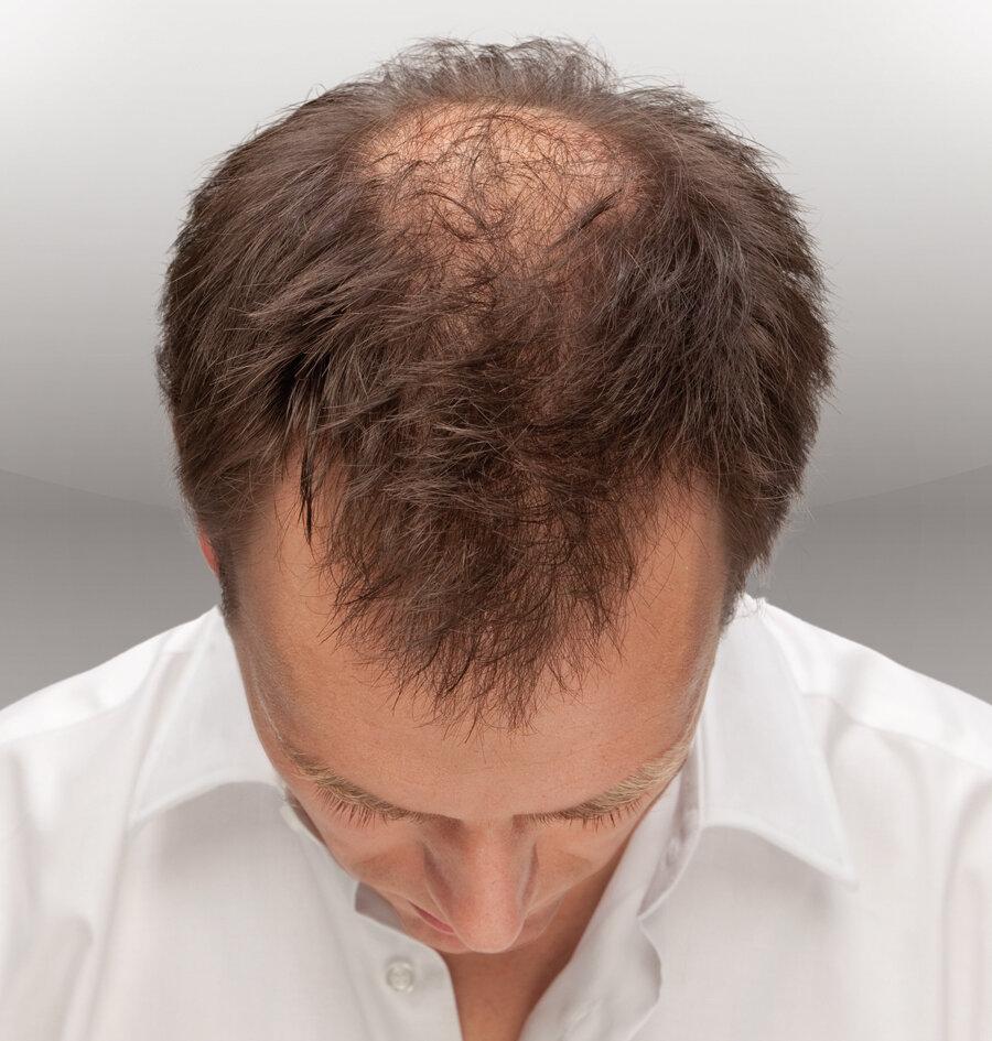 Алопеция: причины и лечение очагового и тотального облысения у детей, профилактика выпадения волос