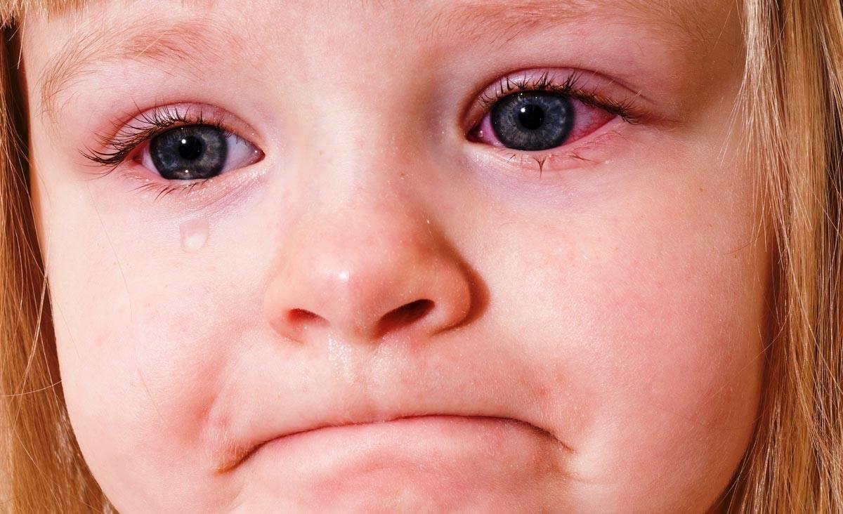 Гноятся глаза и насморк у ребенка, что делать при гное из глаз при насморке?