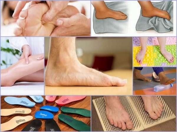 Плоскостопие. причины, симптомы, степени, диагностика плоскостопия. плоскостопие у детей – как определить плоскостопие? продольное и поперечное плоскостопие. лечение плоскостопия – массаж, обувь и стельки при плоскостопии, упражнения :: polismed.com