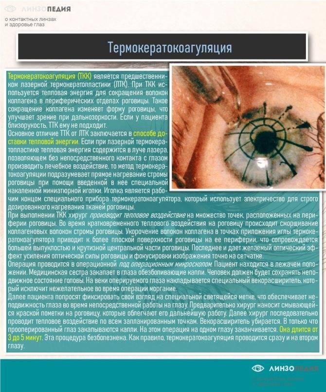 """Астигматизм у детей: причины, симптомы, лечение - """"здоровое око"""""""
