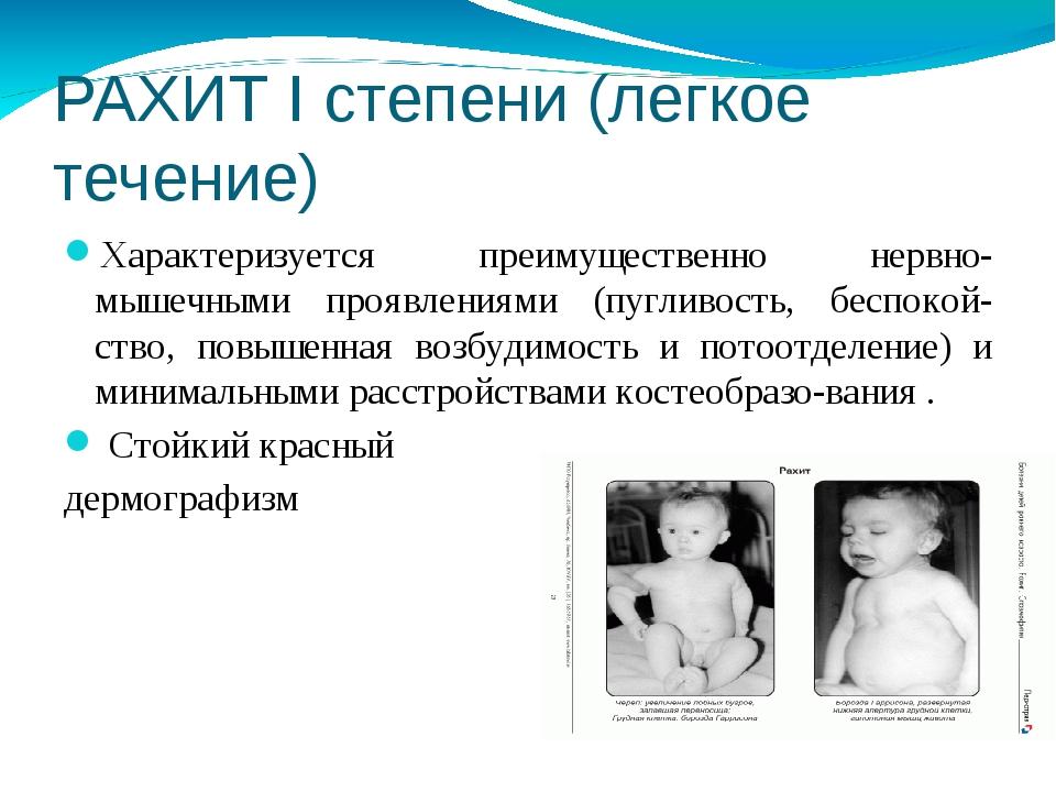 Рахит у детей (43 фото): что это, симптомы и лечение, первые признаки, как определить, последствия при 1 и 2 стадии