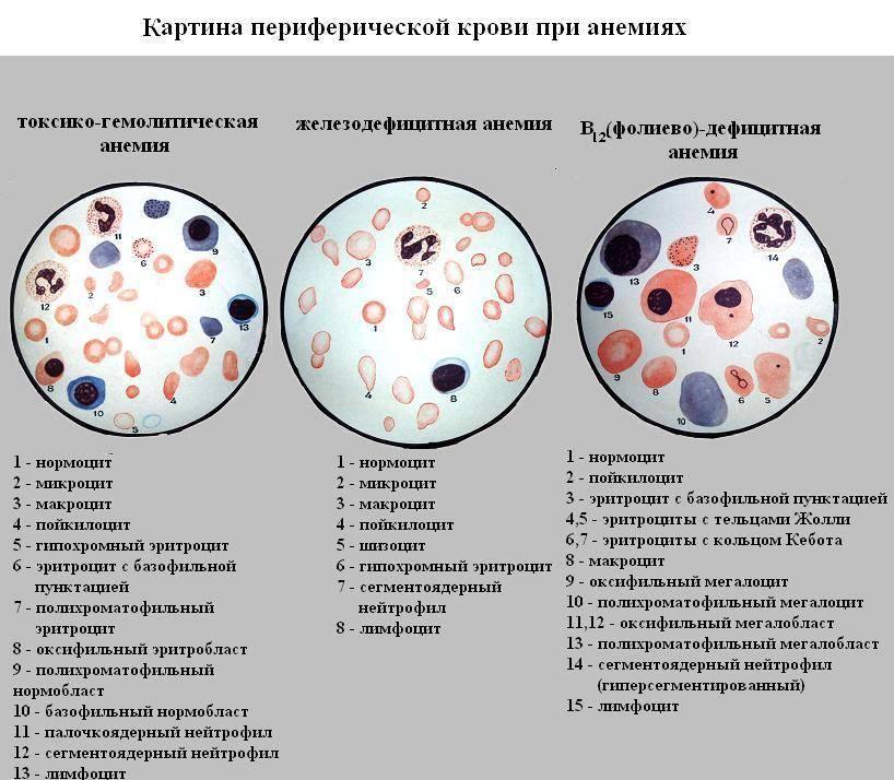 Нормы спермограммы, расшифровка показателей и причины отклонений. лецитиновые зерна в спермограмме