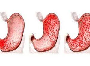 Симптомы гастрита у детей и особенности течения заболевания
