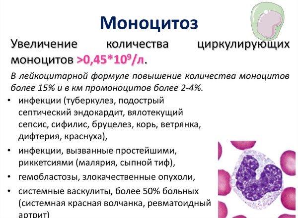 Повышенные моноциты в крови у ребенка: 6 причин повышения, подготовка к анализу, расшифровка результатов