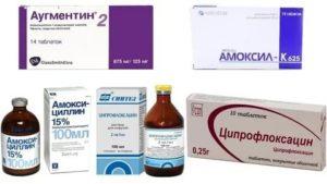 Применение антибиотиков при отите у детей: оправданно ли?