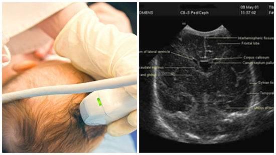 Нейросонография: что выявляет нсг головного мозга новорожденных, показания для узи головного мозга у грудничка