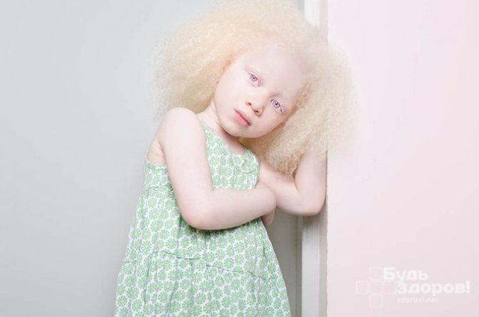 Люди-альбиносы, дети-альбиносы – кто такие, сколько живут? альбинизм у человека