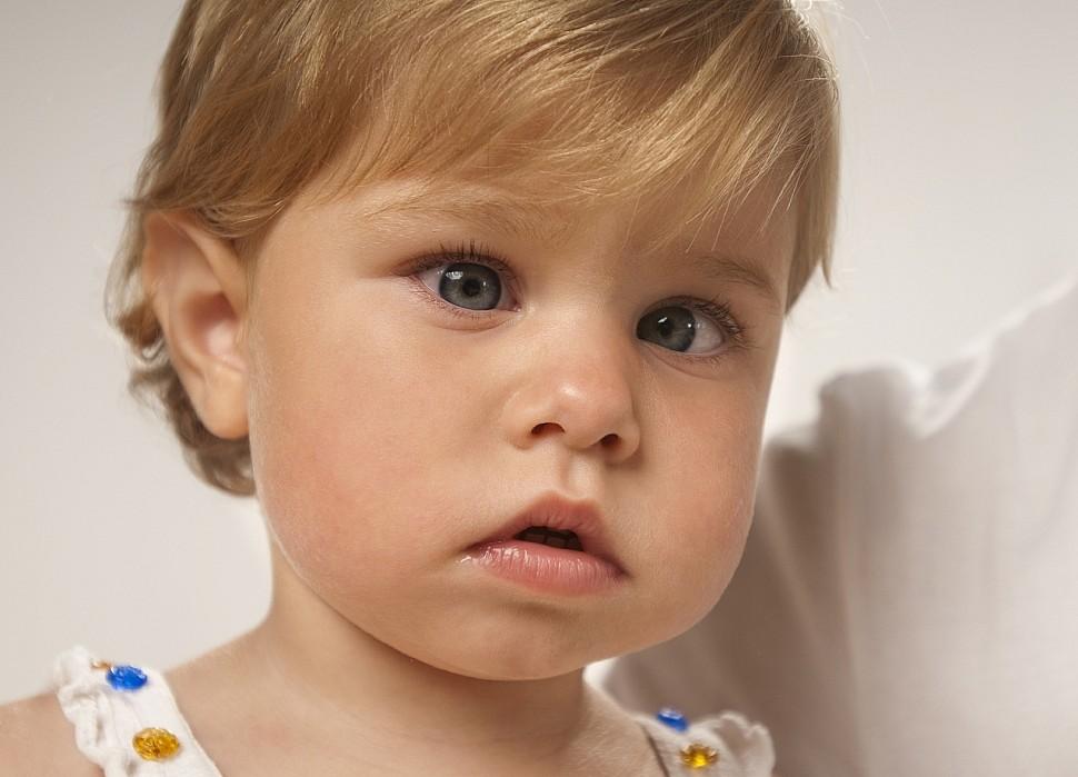 Косоглазие у детей причины, лечение, виды