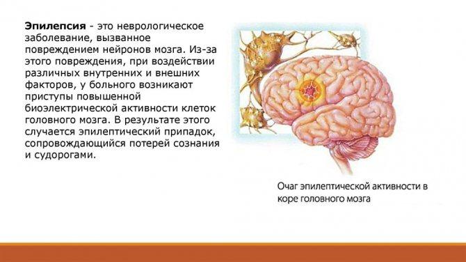Как эпилепсия у детей влияет на их развитие?